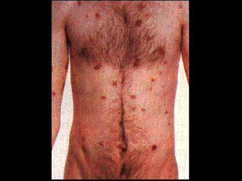 بالصور مرض السيدا بالصور , كون قريب الي الله واحذر الايدز 69 8