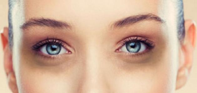 بالصور وصفات طبيعيه لازالة السواد تحت العين , وصفه سريعه لمنع اللون الغامق اسفل العيون 225 1