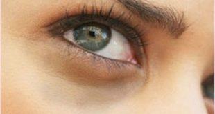 صورة وصفات طبيعيه لازالة السواد تحت العين , وصفه سريعه لمنع اللون الغامق اسفل العيون