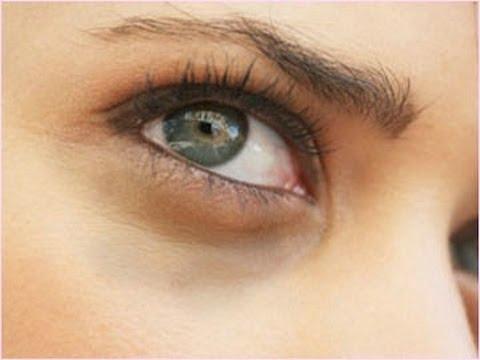 بالصور وصفات طبيعيه لازالة السواد تحت العين , وصفه سريعه لمنع اللون الغامق اسفل العيون 225