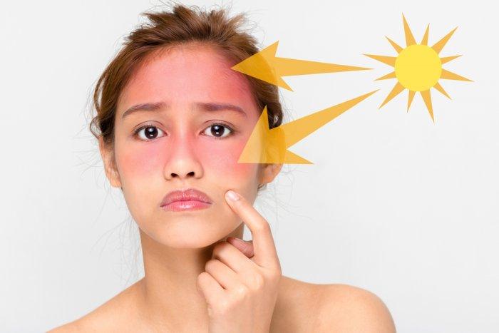 بالصور قناع لازالة البقع من بشرة تعرضت لحروق الشمس , مسك يفتح المناطق الداكنه للبشرة 393 1