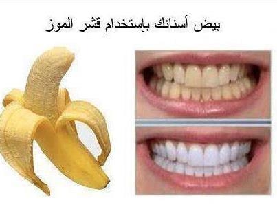 صورة تبيض الاسنان طبيعيا , طرق تبيض الاسنان