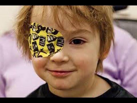 صورة علاج العين الكسولة , ماهي اسباب الاصابه بالعين الكسولة