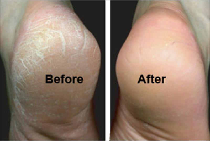 صورة اسباب تشقق القدمين , العوامل التي تؤدي الي تشقق القدمين