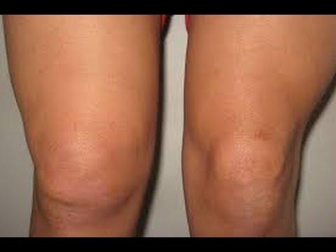 صورة علاج ماء الركبة , كيفية التخلص من مرض ماء الركبة