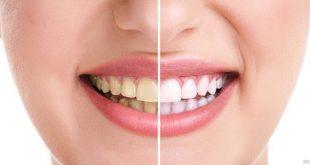اسهل طريقة لتبييض الاسنان , كيفية تفتيح الاسنان بسهولة
