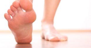 وصفة لتنعيم القدمين , نعومة القدمين حصرى