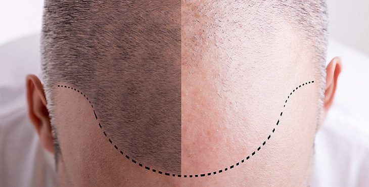 صورة علاج الشعر الخفيف من الامام للنساء , طريقه سهله وبسيطه للشعر
