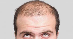 صوره علاج الشعر الخفيف من الامام للنساء , طريقه سهله وبسيطه للشعر