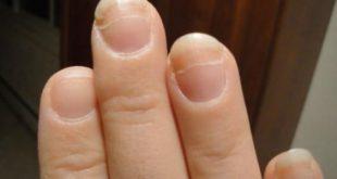 بالصور كيفية تطويل الاظافر , اسباب قطم الاظافر وعلاجها 4684 2 310x165