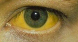 صوره مرض الصفراء عند الكبار وعلاجه , اعراض مرض الصفراء وعلاجه عند الكبار