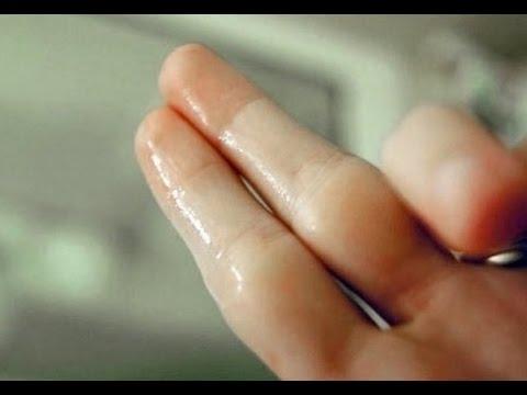 صورة الافرازات المهبلية البيضاء اللزجة , مسببات الافرازات المهبلية