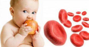 علاج الانيميا الحادة عند الاطفال , فقر الدم عند الاطفال
