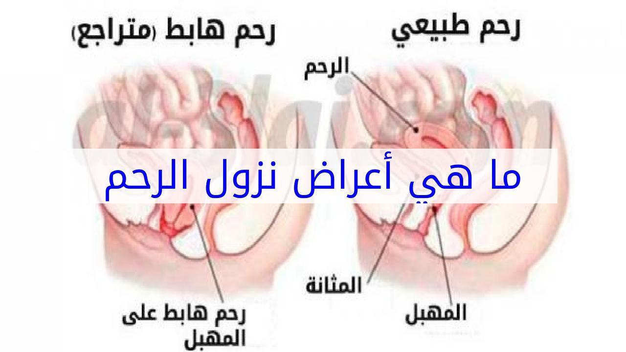 صورة علاج نزول الرحم , اسباب نزول الرحم وطرق علاجه