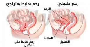 صوره علاج نزول الرحم , اسباب نزول الرحم وطرق علاجه