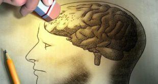 صور اسباب ضعف الذاكرة , عوامل تؤدى الى ضعف الذاكرة