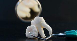صورة خلع الضرس بالمنام , تفسير رؤية خلع الاسنان