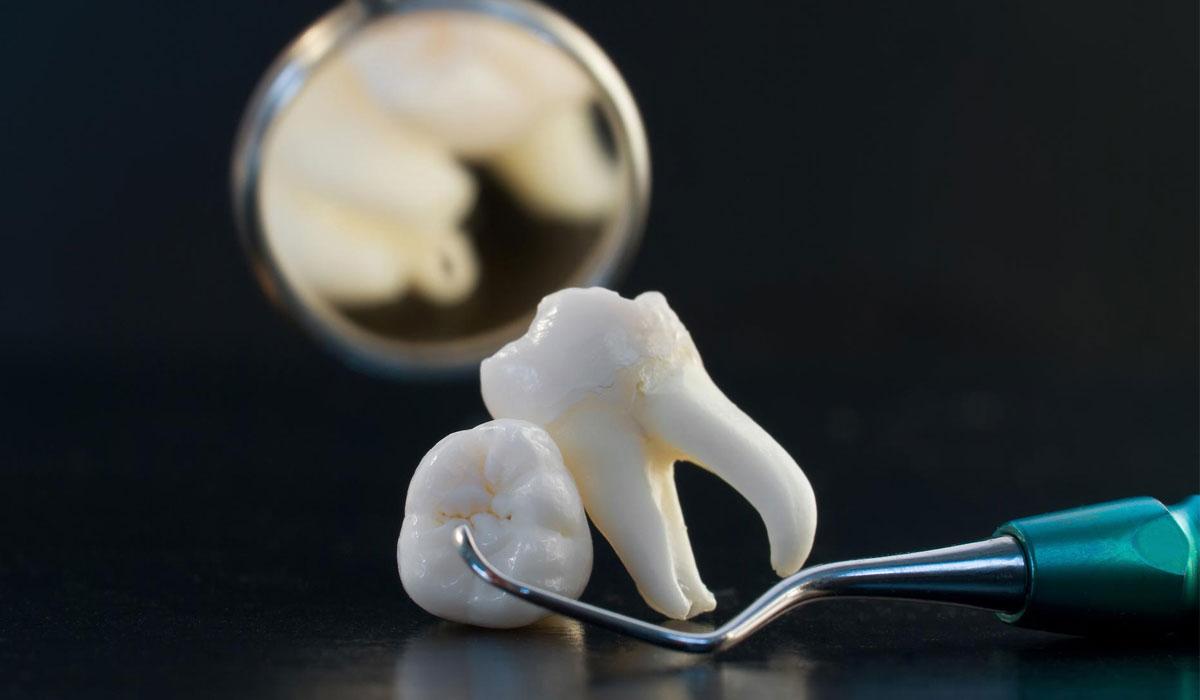 صوره خلع الضرس بالمنام , تفسير رؤية خلع الاسنان