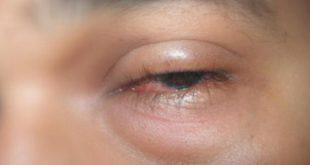 صوره اسباب انتفاخ العين , تعرف على اسباب وعلاج انتفاخ العين