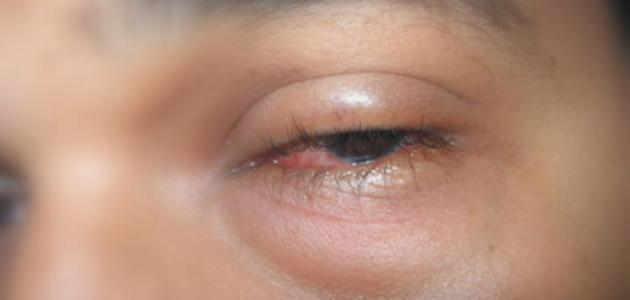 صورة اسباب انتفاخ العين , تعرف على اسباب وعلاج انتفاخ العين