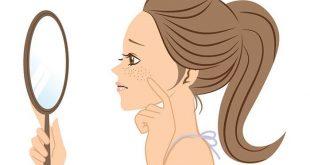 بالصور التخلص من البقع البنية في الوجه , وصفه رهيبه من البيت لعلاج البقع البنيه فى الوجه 3544 2 310x165
