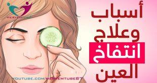 صورة علاج انتفاخ العين علاج انتفاخ تحت العين بالليزر , علاج العين وانتفاخها