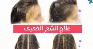 صوره تقوية الشعر الخفيف , كيفية تتقيل الشعر سريعا بعد التساقط