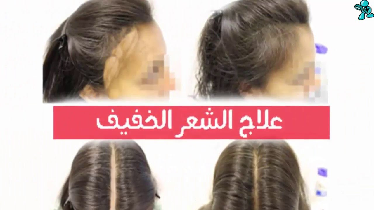 بالصور تقوية الشعر الخفيف , كيفية تتقيل الشعر سريعا بعد التساقط 4074