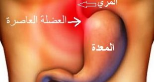 صور علاج الحموضه والحرقان للحامل , الحموضه وعلاجها بالخضار