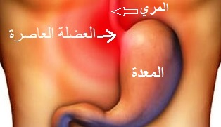 صوره علاج الحموضه والحرقان للحامل , الحموضه وعلاجها بالخضار