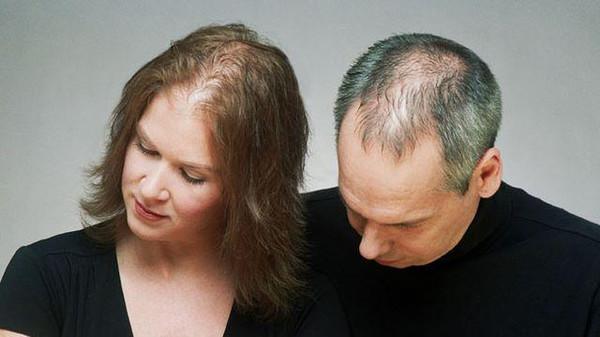 صور الصلع في المنام , تفسير حلم الصلع او تساقط الشعر