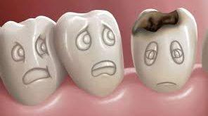 بالصور علاج الم الاسنان للاطفال , طرق امنه لعلاج الم الاسنان عند الصغار 5958 2 296x165
