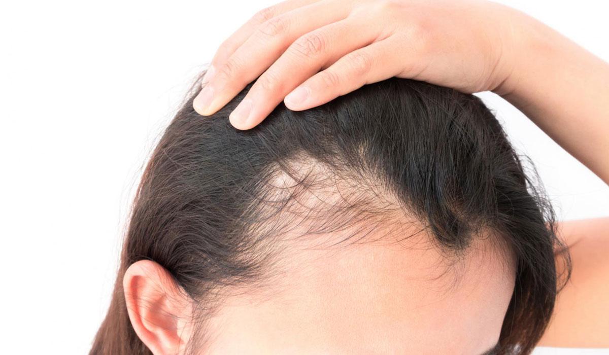 بالصور علاج تساقط الشعر للنساء , وصفات طبيعية لعلاج الشعر 1812