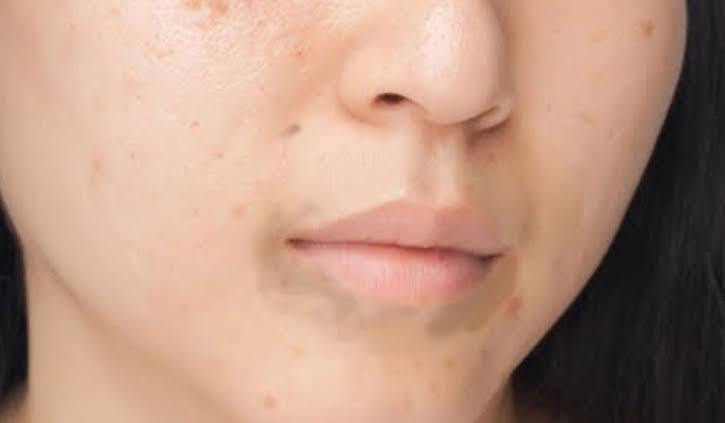 صورة علاج سواد حول الفم , افضل وسائل للتخلص من الاسمرار حول الفم