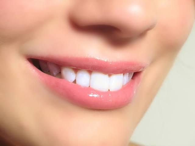 بالصور وصفة سهلة لتبييض الاسنان , وصفة طبيعية و سريعة لتبيض الاسنان