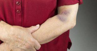 صورة اسباب نزول الصفائح الدموية , اعراض نزول الصفائح الدموية