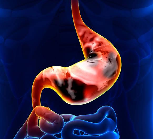 صورة اسباب سرطان المعدة , تعرف علي انواع سرطان المعدة و اسبابه