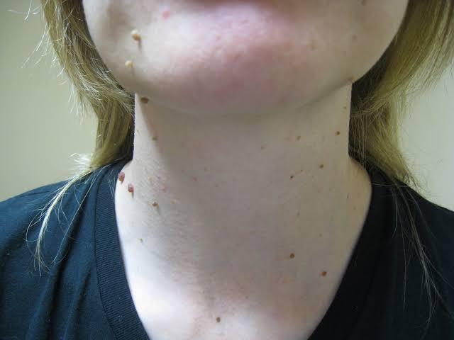 صورة الزوائد الجلدية في الوجه , ما هي الزوائد الجلدية في الوجه و كيفية ازالتها