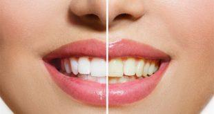 وصفة سهلة لتبييض الاسنان , وصفة طبيعية و سريعة لتبيض الاسنان