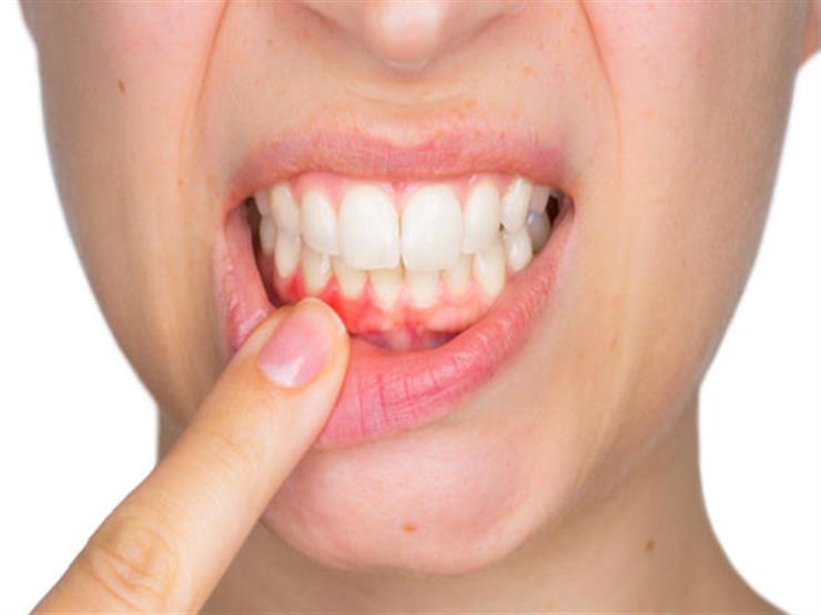 صور ما سبب رائحة الفم , تعرف علي الاسباب التي تسبب الرائحة الكريهه للفم