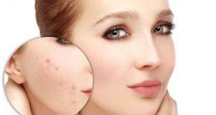 صورة كريم لازالة حبوب الوجه , افضل نوع كريم للتخلص من حبوب الوجه