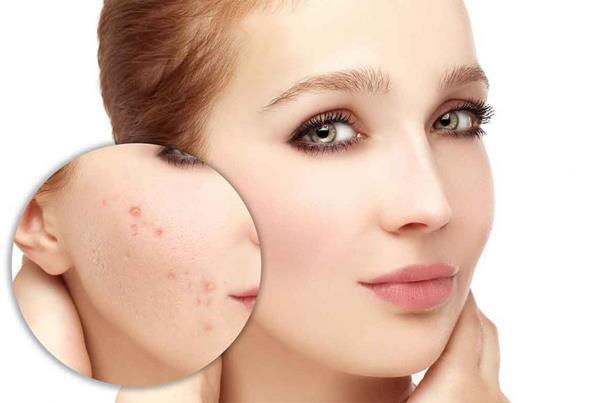 صور كريم لازالة حبوب الوجه , افضل نوع كريم للتخلص من حبوب الوجه