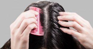 صورة علاج قشرة الشعر بالاعشاب , كيفية التخلص من القشرة فى الشعر