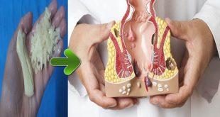 صورة علاج مرض البواسير بالاعشاب , كيفيه الوقايه من مرض البواسير