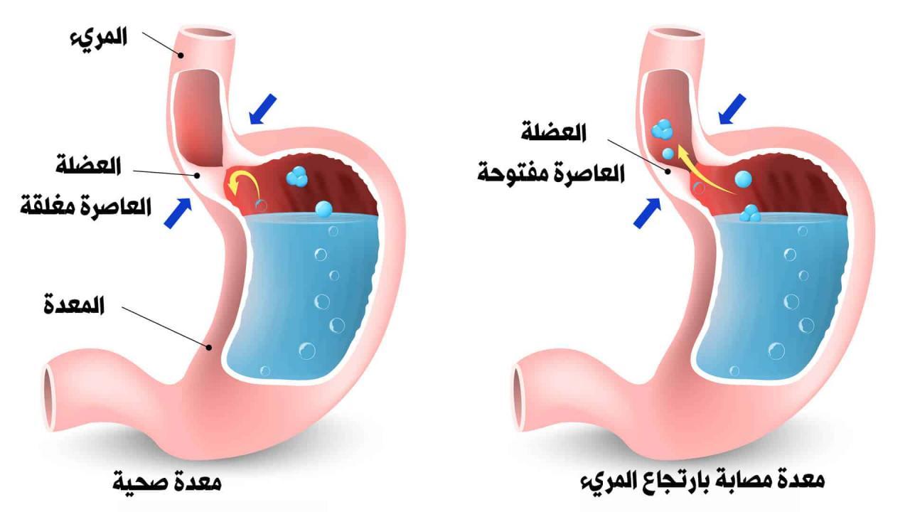 بالصور علاج الارتداد المريئي بالاعشاب , افضل واحلى علاج للارتداد المريئى بالاعشاب 13090