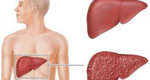 صور علاج التهاب الكبد c بالاعشاب , كيفيه الوقايه من التهاب الكبد بالاعشاب