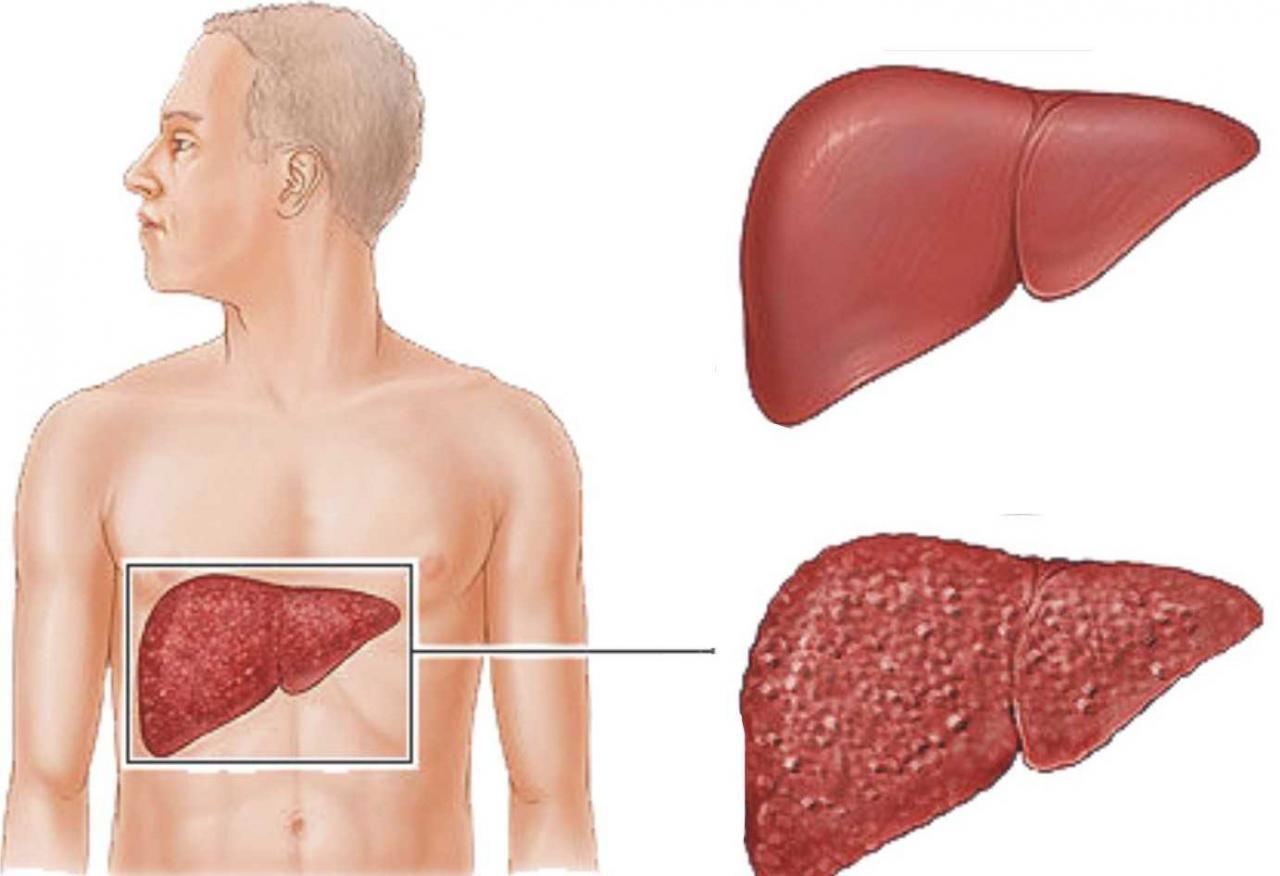 صورة علاج التهاب الكبد c بالاعشاب , كيفيه الوقايه من التهاب الكبد بالاعشاب