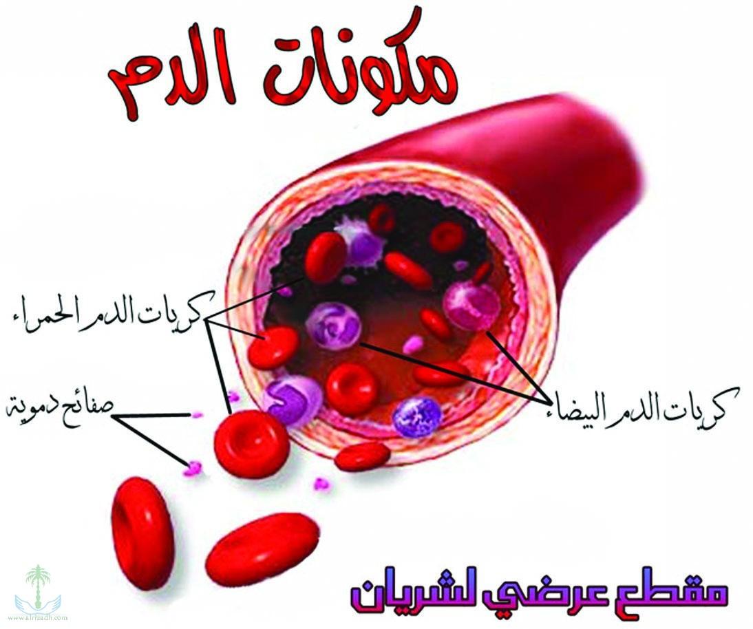 صورة ماهو تكسر الدم , وماهي اسبابه