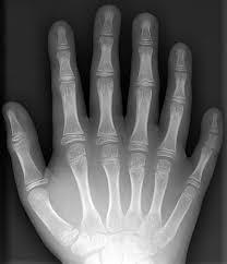 صورة الم اصابع اليد , تعرف على اسباب الم اصابع اليد وطرق علاجها