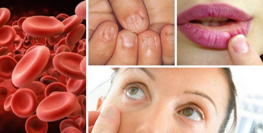 صورة اعراض فقر الدم , مضاعفات ناتجة عن فقر الدم